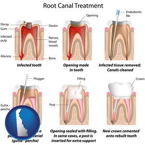 root canal treatment performed by an endodontist - with Delaware icon