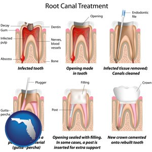 root canal treatment performed by an endodontist - with Florida icon