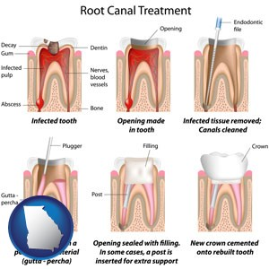 root canal treatment performed by an endodontist - with Georgia icon