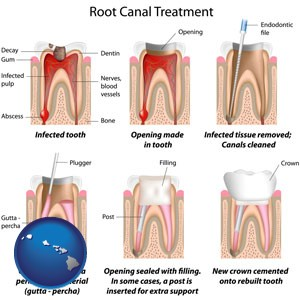 root canal treatment performed by an endodontist - with Hawaii icon