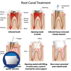 root canal treatment performed by an endodontist - with Iowa icon