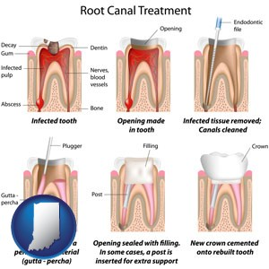 root canal treatment performed by an endodontist - with Indiana icon