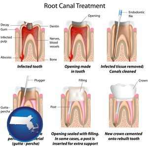 root canal treatment performed by an endodontist - with Massachusetts icon
