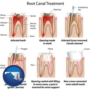 root canal treatment performed by an endodontist - with Maryland icon