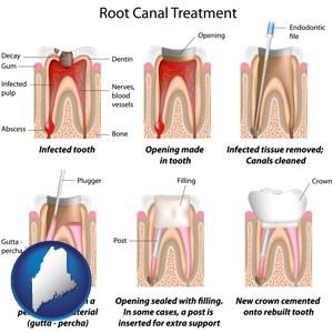root canal treatment performed by an endodontist - with Maine icon