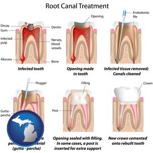 root canal treatment performed by an endodontist - with Michigan icon
