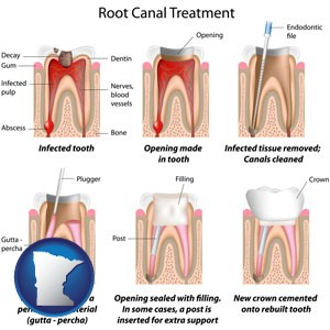 root canal treatment performed by an endodontist - with Minnesota icon