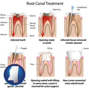 root canal treatment performed by an endodontist - with Mississippi icon