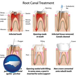 root canal treatment performed by an endodontist - with North Carolina icon