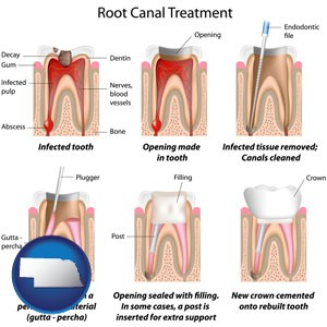 root canal treatment performed by an endodontist - with Nebraska icon