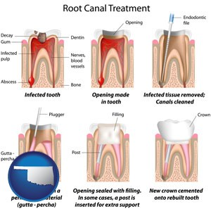 root canal treatment performed by an endodontist - with Oklahoma icon