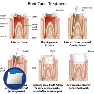 root canal treatment performed by an endodontist - with Oregon icon