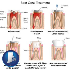 root canal treatment performed by an endodontist - with Rhode Island icon