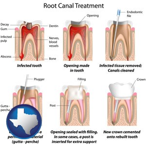root canal treatment performed by an endodontist - with Texas icon