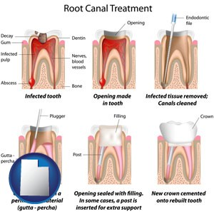 root canal treatment performed by an endodontist - with Utah icon