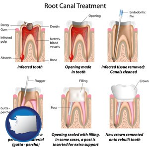 root canal treatment performed by an endodontist - with Washington icon
