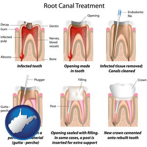 root canal treatment performed by an endodontist - with West Virginia icon